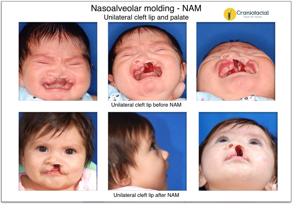 Nasoalveolar Molding (NAM) Unilateral cleft lip and palate Craniofacial Team of Texas (CTOT) Austin
