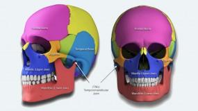 Syndromes – Craniofacial Deformities