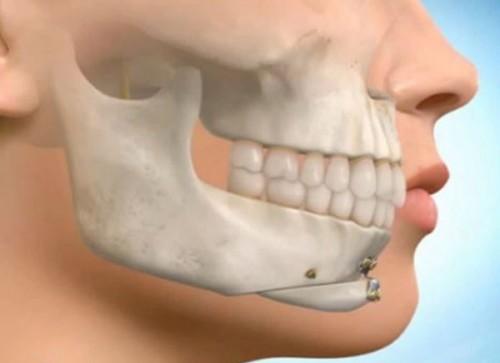 Chin Adjustment Surgery (Osseous Genioplasty)