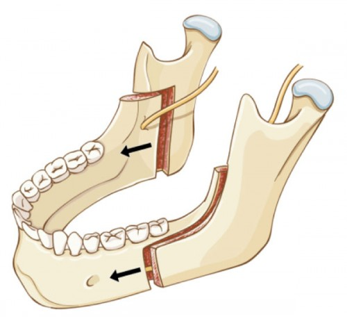 Lower Jaw Surgery (Bilateral Sagittal Split Osteotomy, BSSO)