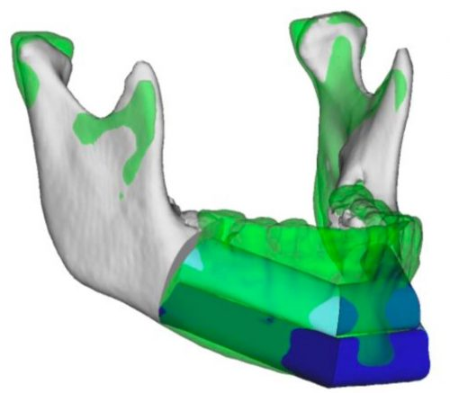 Virtual Surgery and Technology for mandible tumor
