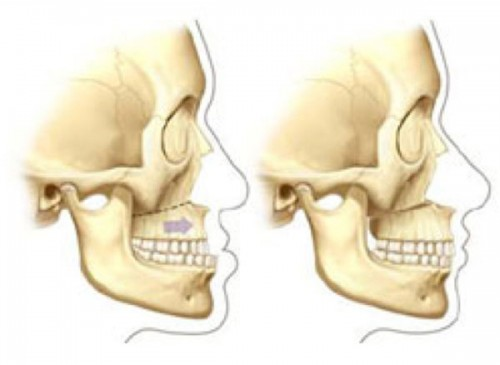 Orthognathic Surgery - Craniofacial Team of Texas