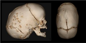 Craniosynostosis Diagnosis and Treatment 3d CT scan of skull