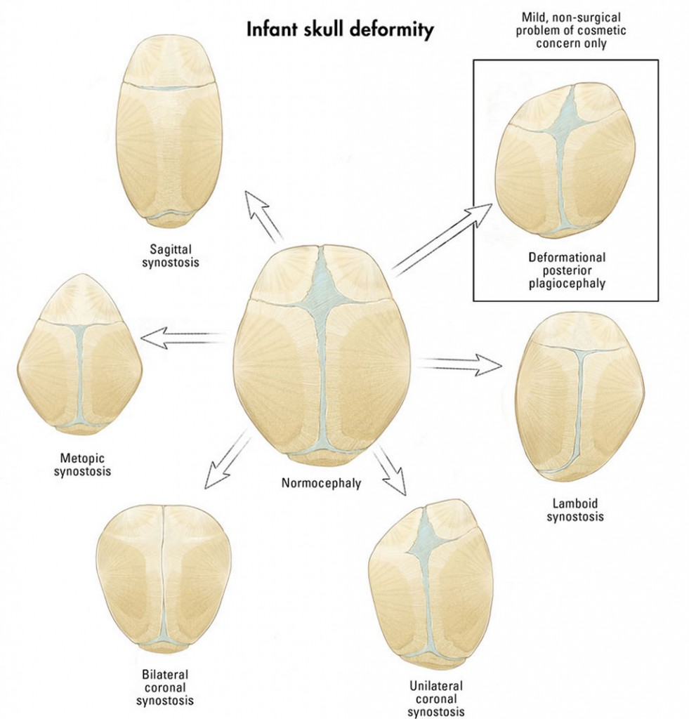 types of craniosynostosis