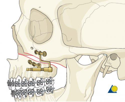 Distraction Osteogenesis (Bone Lengthening) for Lefort 1