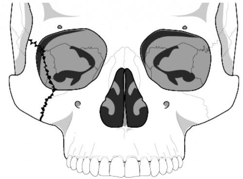 zygoma facial fracture
