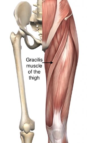 Microsurgery with Gracilis--muscle-of-the-thigh