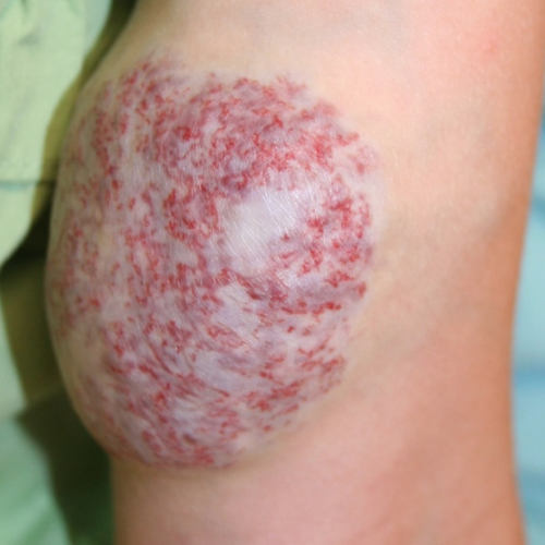 Noninvoluting congenital hemangioma (NICH) on knee