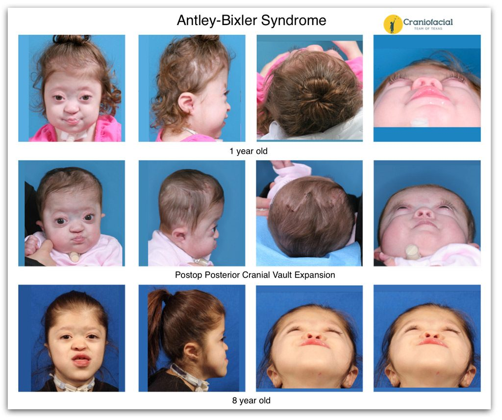 Craniofacial Syndromes Gallery - EarWell Center of Excellence