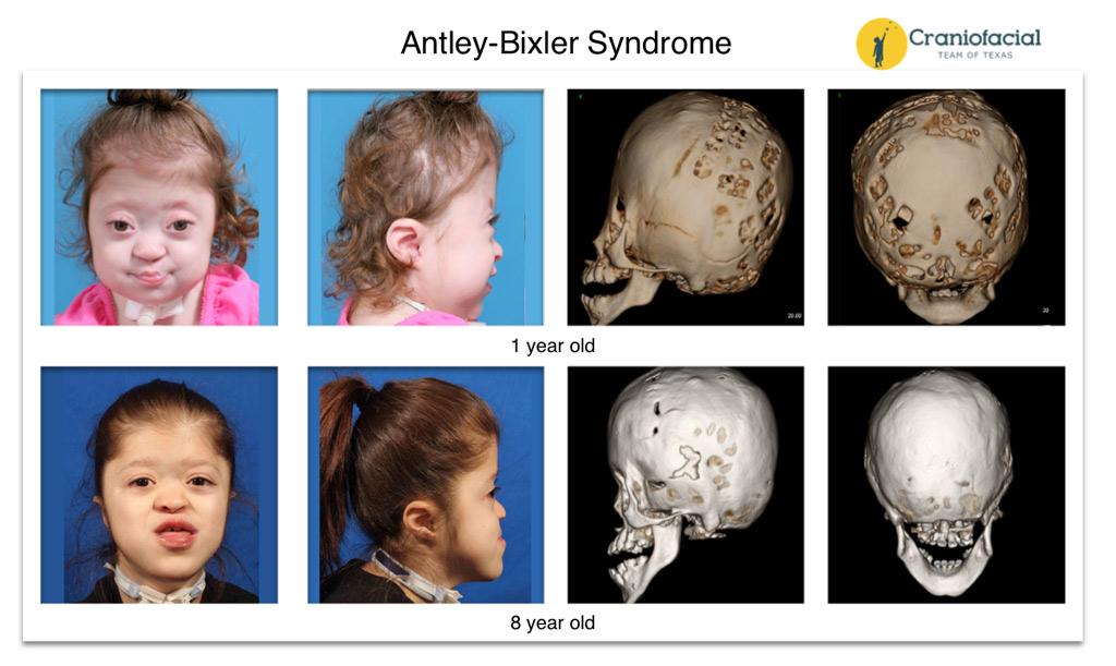 Craniofacial Syndromes...