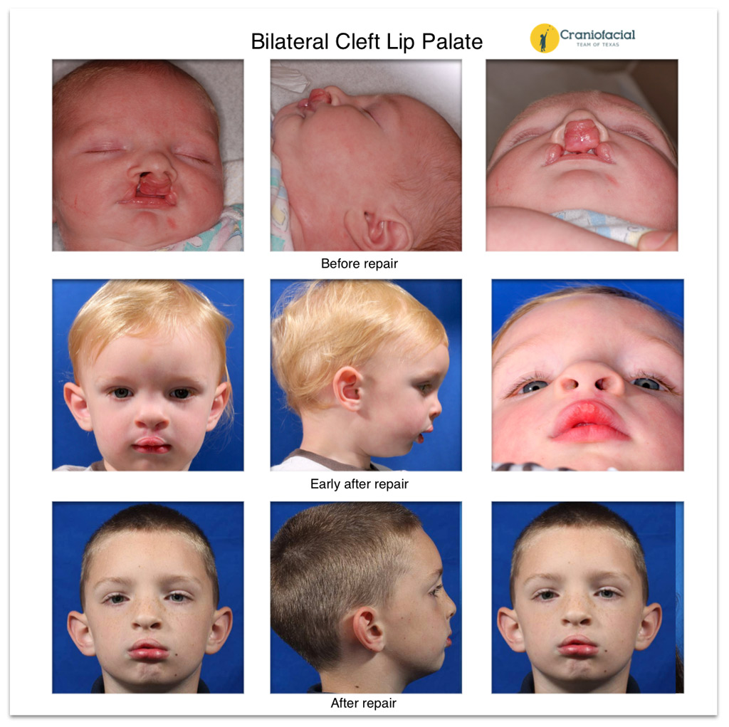 cleft lip and palate essay Children, language, surgery, speech, development - cleft lip and palate.