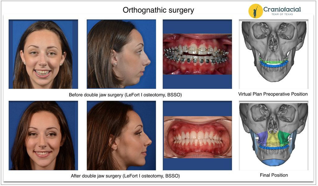 Orthognathic Surgery Gallery