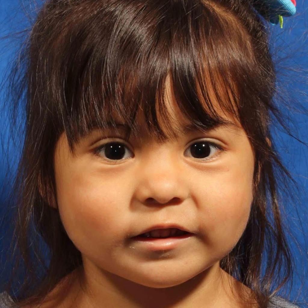 Синдром пьера робена фото детей