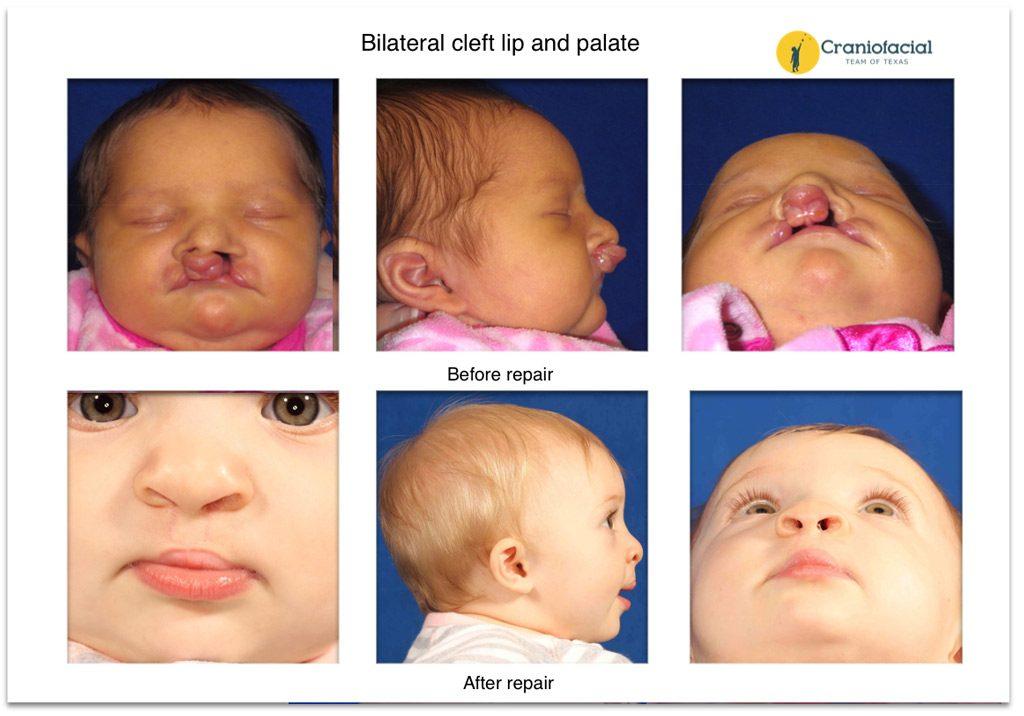 Reapir of facial cleft bilateral