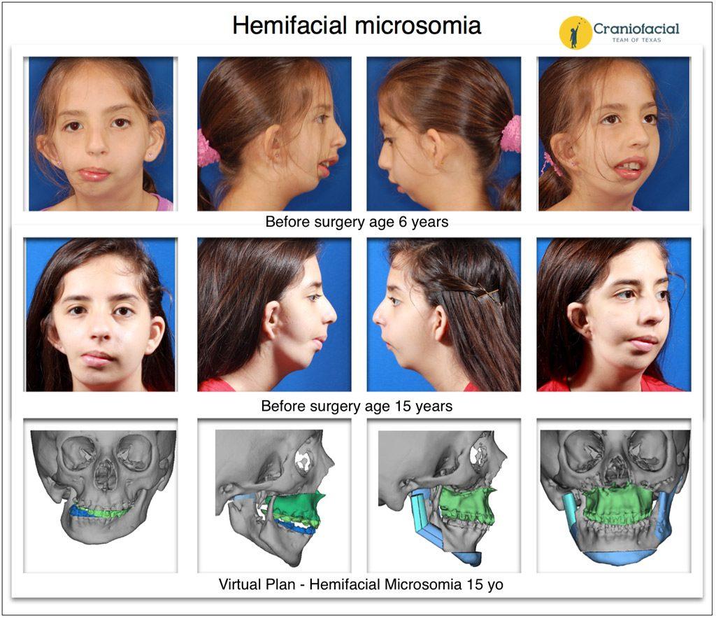 Facial microsomia hemi