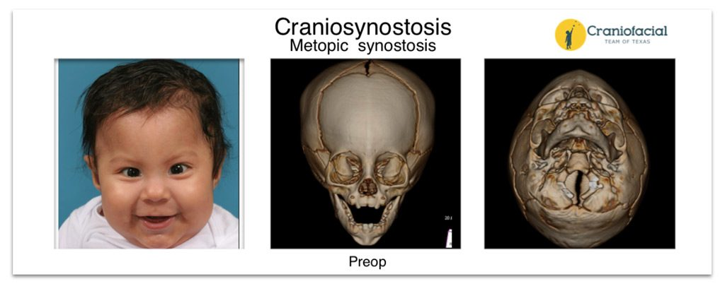 Metopic Synostosis CT Sacn - Craniofacial Team of Texas (CTOT) Austin