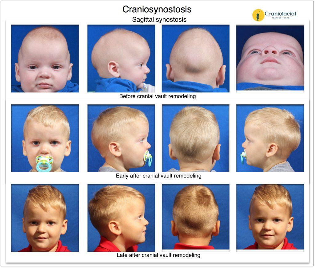Craniosynostosis Gallery