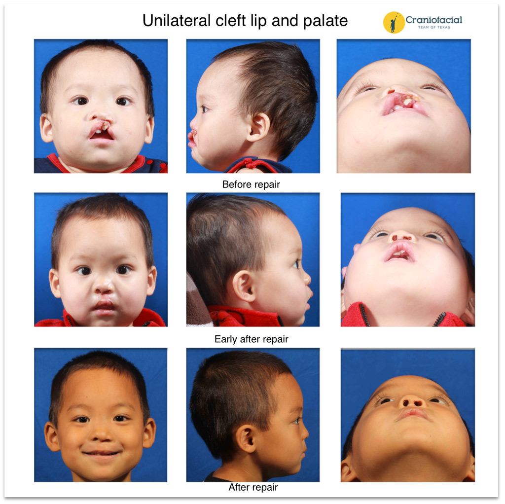 cleft lip and palate essay Some infants are born with a cleft lip, cleft palate or both please use one of the following formats to cite this article in your essay, paper or report: mla.