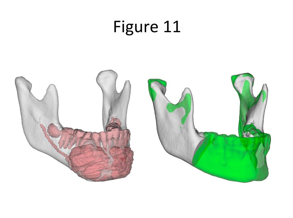 Virtual Planning for Craniofacial Surgery - Craniofacial Team of Texas