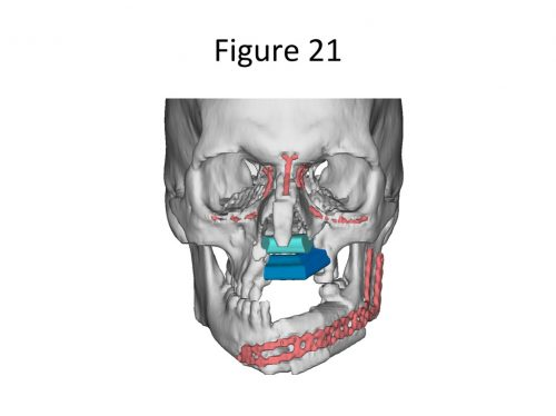 Virtual Surgical Planning 21