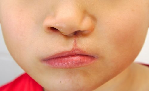 social stigma of cleft lips and cleft palates