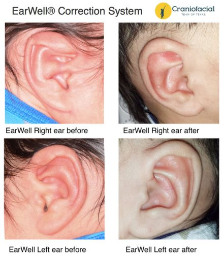 Ear Deformity Correction Infants EarWell® Correction System – Nonsurgical Ear Deformity Correction in Newborns