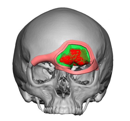 Medical modeling of osteoma with custom cutting guide to ensure adequate margins