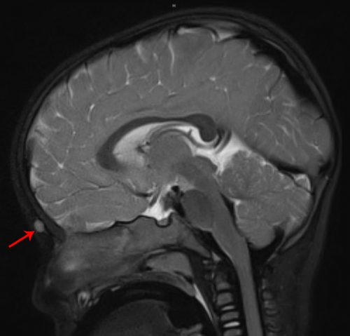 "Dermoid of midline nasal region (red arrow). MRI to rule out intracranial extension or ""dumbell lesion""."