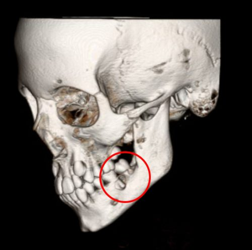 Pediatric patient with giant cell tumor of mandible