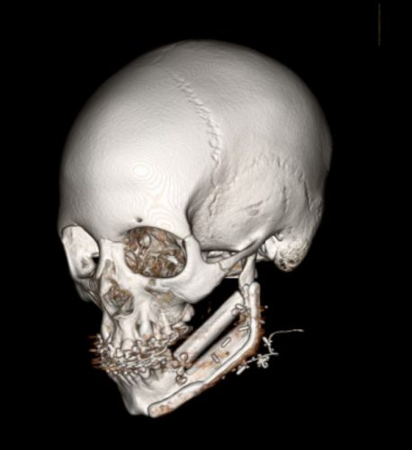 Pediatric patient after giant cell tumor resection and free fibula reconstruction